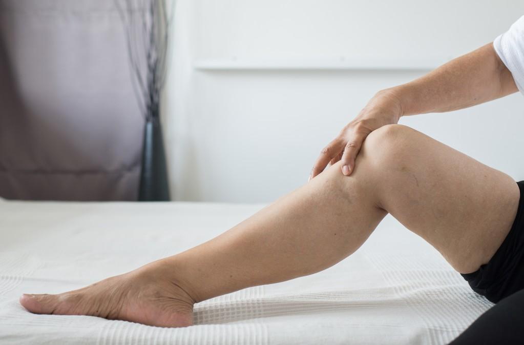 ¿Qué son las venas azuladas en las piernas?